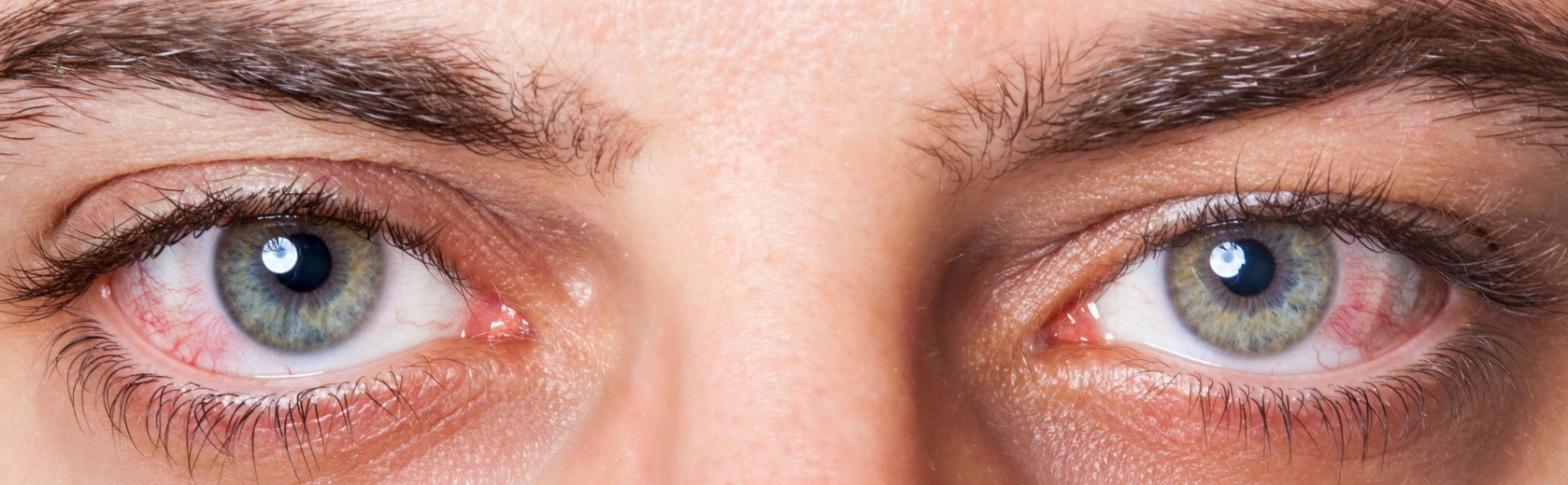 Options Optometrists dry eye treatments